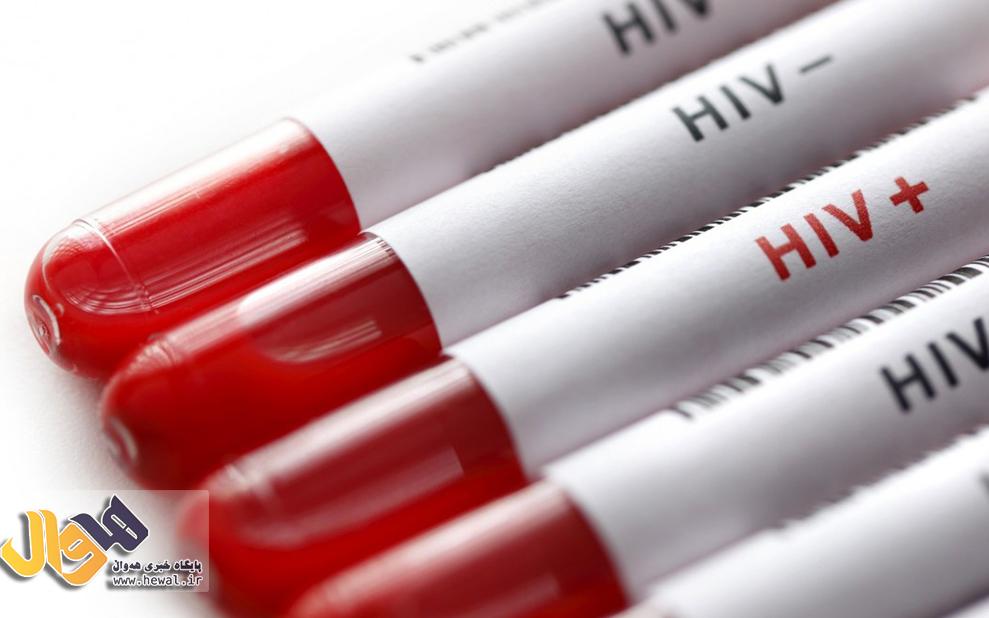 ایتالیاییها موفق به تولید واکسنی برای مقابله با ویروس اچآیوی شدند