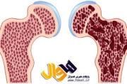تاثیر کمبود آهن در بروز پوکی استخوان