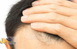 ریزش مو در کدام فصل بیشتر است؟ و چرا؟